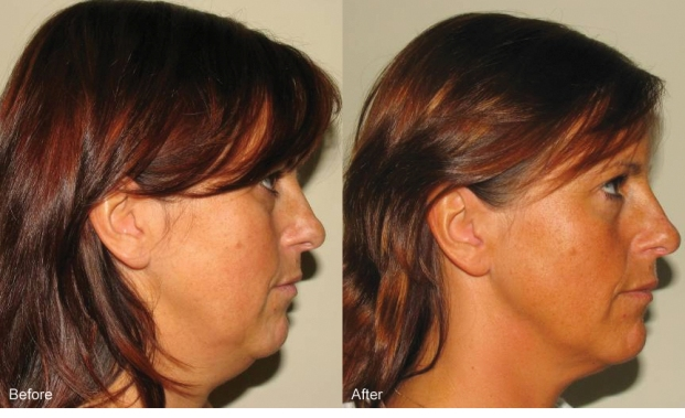 Accent skin tightening and cellulite reduction - cheeks before and after photos