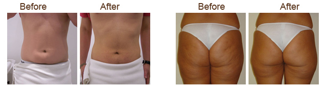 FusioMed Fat Freeze before and after