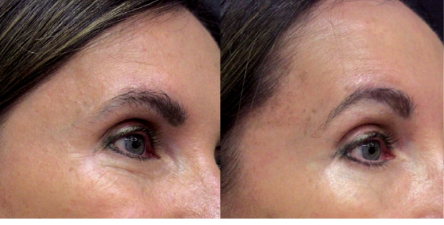 Accent skin tightening and cellulite reduction - eyes before and after photos